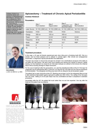 Apicoectomy – Treatment of Chronic Apical Periodontitis