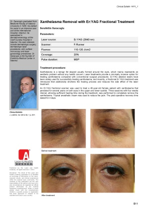Xanthelasma Removal with Er:YAG Fractional Treatment
