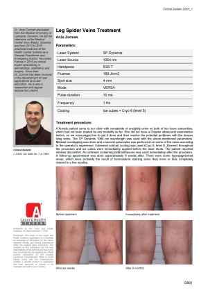 Leg Spider Veins Treatment