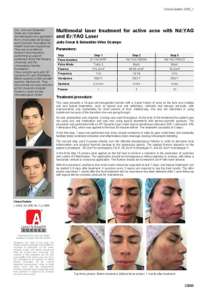 Multimodal laser treatment for active acne with Nd:YAG and Er:YAG Laser